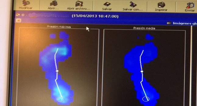 Estudio biomec nico de la pisada fisioterapia vitalthea for Estudio de pisada